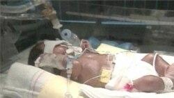 Rates of Premature Births Rising Worldwide