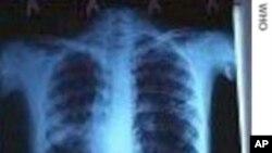အဆုပ္ေရာဂါ (Tuberculosis) ကုထံုးသစ္ နဲ႔ ကာကြယ္ေရး