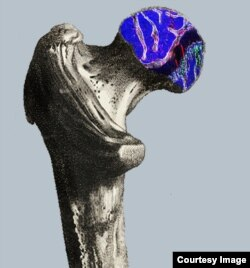 Schematic of the head of a femur (the thigh bone), showing OCR stem cells in red and the growth of bone (green), cartilage and stromal cells. (Mike Barnett for Columbia University Medical Center)