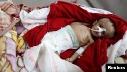 Un garçon souffrant de malnutrition à l'hôpital al-Sabeen à Sanaa, au Yémen, le 10 septembre 2018.