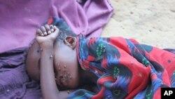 سومالیا کې 4 سوه زره ماشومان د مرګ د ګواښ سره مخ دي