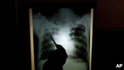 결핵 환자의 X-레이 사진 (자료사진)