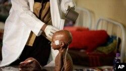 Un enfant mal nourri recevant des soins médicaux à Maiduguri, Nigeria, le 29 aout 2016.