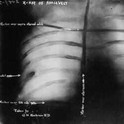 An x-ray of Theodore Roosevelt's rib showing the bullet shot by John Schrank