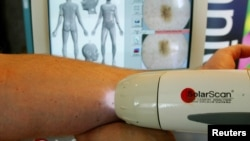 SolaScan, a new device to detect skin cancer, is demonstrated at its launch in Sydney, Australia, May 7, 2002.