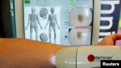 FILE - SolaScan, a new device to detect skin cancer, is demonstrated at its launch in Sydney, Australia, May 7, 2002. Scientists in Australia say in July 2018, they have developed the world's first blood test to detect melanoma in its early stages.