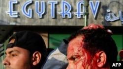 Povređeni demonstranti u Egiptu