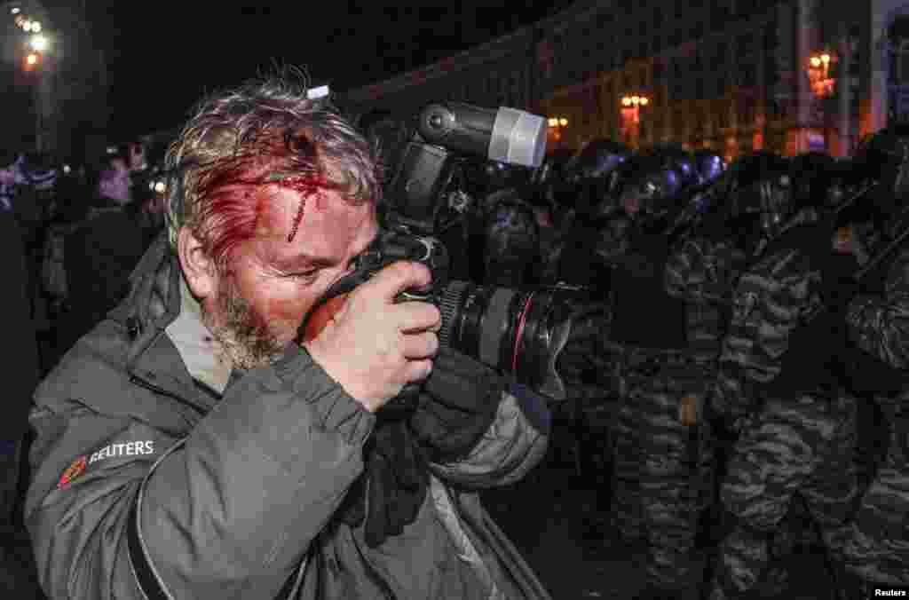 ګلب ګرانیچ، د رویترز د آژانس عکاس چې د اوکراین به کیف ښار کې د یوه لاریون په لړ کې د پولیس له خوا ټپي ښوی دی.