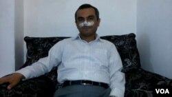 آقای قوامی می گوید حمله دو موتور سوار به جراحت بینی او منجر شده است.