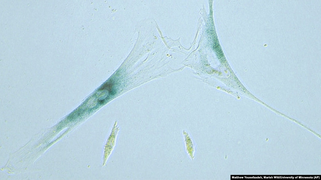 This April 2019 microscope photo provided by the Niedernhofer Lab of the Institute on the Biology of Aging and Metabolism at the University of Minnesota shows shows two senescent human fibroblast cells, above, next to normal ones in Minneapolis, Minnesota