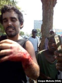 Luaty Beirão atacado por cão policial, Angola