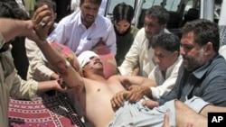 18일 파키스탄 코하트에서 발생한 도로변 폭탄 테러로 부상한 주민.