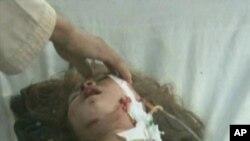 یک طفل مجروح در انفجار بلخ