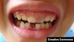 Chinese scientists have grown teeth from stem cells cultured from human urine.