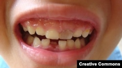 "Chinese scientists have grown teeth from stem cells cultured from human urine. (Via <a href=""http://www.flickr.com/photos/sugree/"">Flickr</a>)"