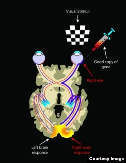 Being a bilateral disease, visual pathways in LCA2 patients on both sides are atrophied due to lack of visual inputs. After reinstating vision by injection of good copies of the gene, visual pathways from the injected area to the brain strengthen over time. Hence there is an asymmetrical brain response showing much larger activations in the retina-brain pathway from the injected eye when each eye is exposed to visual stimuli. (Credit: Illustrated by Elena Nikonova)