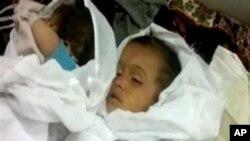 敘利亞兒童被殺害。