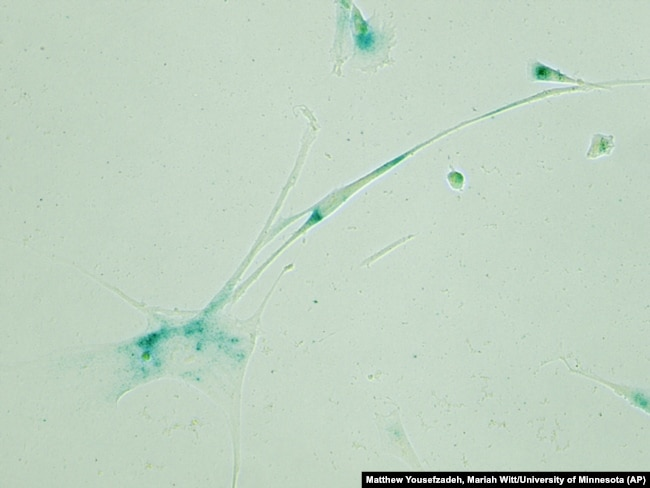 This April 2019 microscope photo provided by the Niedernhofer Lab of the Institute on the Biology of Aging and Metabolism at the University of Minnesota shows senescent human fibroblast cells in Minneapolis, Minn.