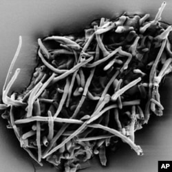 Scanning electron micrograph of fossil ectomycorrhiza which leached out of the amber fragment.
