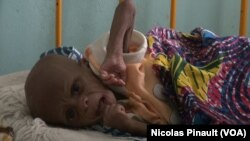 En images : la malnutrition à Diffa