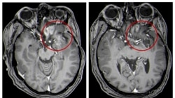 Quiz - Unusual Treatment Shows Promise for Kids With Brain Tumors
