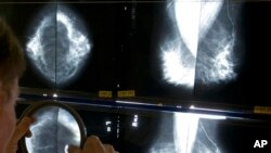 FILE - Radiologist uses magnifying glass to check mammograms for breast cancer in Los Angeles.