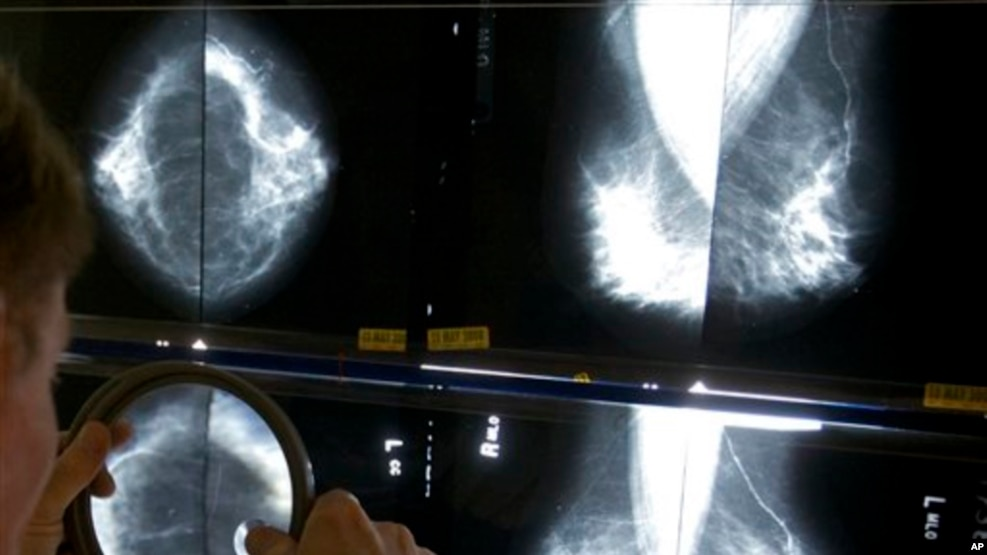 FILE - A radiologist uses a magnifying glass to check mammograms for breast cancer.