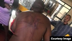 Blessing Kanotunga was abducted and seriously assaulted by state security agents.