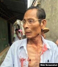 乌坎村民被橡胶子弹击中受伤(网络图片)