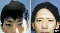 Tatsuya İçihaçi estetik ameliyattan önce ve sonra