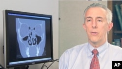 داکتر پیکسیریلو متخصص بیماری سینوس ها