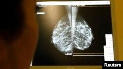"""""""No existe garantía de que al remover el segundo pecho a uno le irá mejor"""", dijo el doctor Len Lichtenfeld, subdirector médico de la American Cancer Society."""