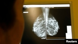 FILE - A doctor exams mammograms, a special type of X-ray of the breasts, which are used to detect tumors, in Nice, France, Jan. 4, 2008.