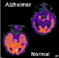 ສະໝອງຂອງເປັນໂຣກ Alzheimer (ຂວາ, ເທິງ) ມີໂປຣຕິນຫລາຍກວ່າສະ ໝອງຂອງຄົນທໍາມະດາ