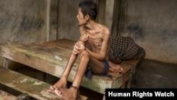 Sebelum meninggal, pria ini dirantai di pusat Kyai Syamsul di Brebes, Jawa Tengah. (Human Rights Watch/Andrea Star Reese)