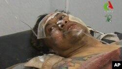18일 알제리 이슬람 반군으로부터 석방된 후, 병원으로 후송된 신원 미확인 인질.