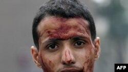 Участник акции протеста, получивший ранение на площади Тахрир