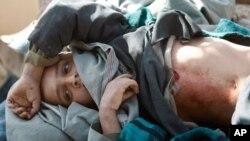 연합군과 탈레반 무장세력의 교전으로 인해 부상당한 아프간 어린이(자료사진)