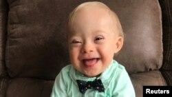 La contagiosa sonrisa de Lucas Warren, un bebé Down, será la nueva imagen de la marca de alimentos Gerber.