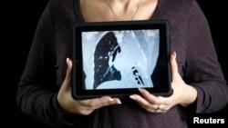 Seorang pasien kanker paru-paru menunjukkan gambar paru-paru sebelah kirinya yang hilang (setelah dioperasi) (Foto: dok).