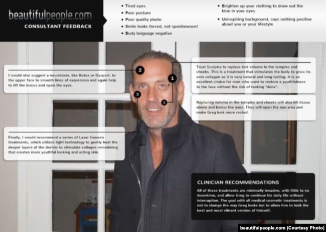 MD ของ beautifulpeople.com ถูกเพิกถอนสมาชิก เพราะหน้าตาไม่ดีมาก่อน พร้อมกับข้อบกพร่องมากมายให้ต้องปรับปรุง