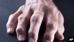 سوتشکلات مفاصل ناشی از آرتریت مفصلی که می تواند به خاطر سگرت کشیدن تاسس کند.