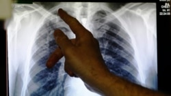 New Partnership Will Take On Multi-Drug-Resistant TB