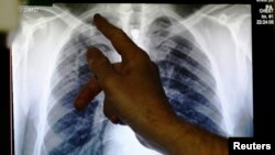 FILE - A doctor points to an X-ray showing a pair of lungs infected with tuberculosis on board a mobile X-ray unit screening for TB in London, Jan. 2014.