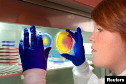 CDC microbiologist, Valerie Albrecht, holds up two plates of methicillin-resistant Staphylococcus aureus (MRSA) in this undated CDC handout photo. The drug-resistant bacterium known as Methicillin-resistant Staphylococcus aureus (Reuters)