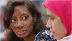 منیره یکی از قربنیان خشونت علیه زنان