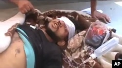 Citizen journalism image made from video provided by Shaam News Network SNN, purports to show a victim wounded by violence that, according to anti-regime activists, was carried out by government forces in Tremseh, Syria, July 12, 2012.