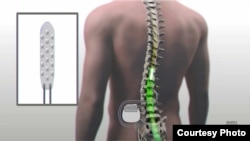 Researchers at the Mayo Clinic placed an electronic device near the injury to Chinnock's spinal cord. (Mayo Clinic)