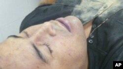 9일 멕시코 해군이 공개한 마약조직 두목 에리베르토 라스카노의 사망 후 모습.