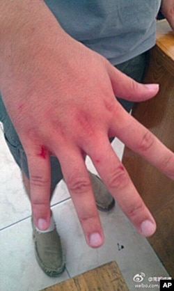 南都记者采访中挨打,手部受伤